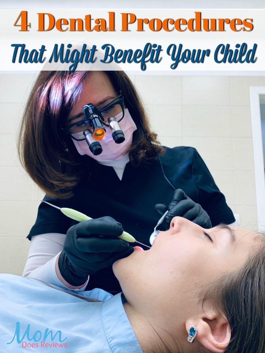 4 Dental Procedures That Might Benefit Your Child #dentist #teeth #child